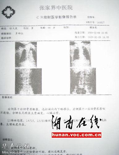 x线报告模板图片