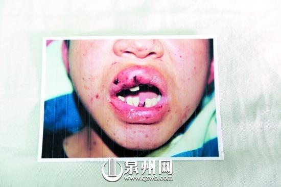 学生夜遇警察设卡掉三颗牙 派出所:无故意打人