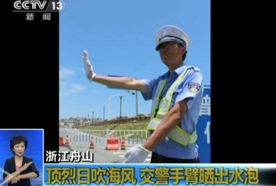 交警执勤顶烈日吹海风 手臂晒出水泡