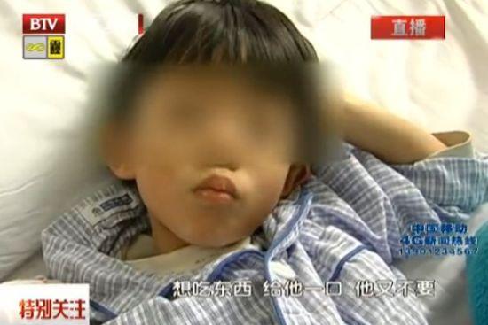 男童体内疑被灌大量汞 臀部挤出水银珠